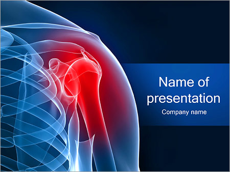 Spinal powerpoint template smiletemplates painful shoulder powerpoint template toneelgroepblik Gallery