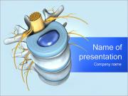 Part of Spine PowerPoint Templates