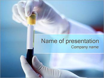 Test sanguin Modèles des présentations  PowerPoint