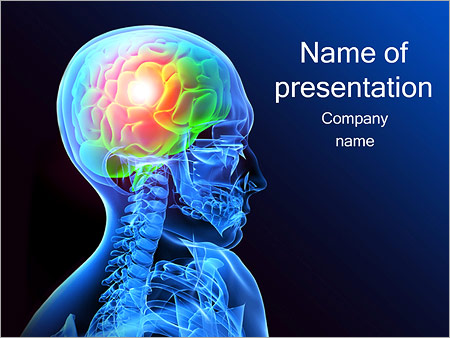 Human Head X Ray Powerpoint Template Backgrounds Google Slides