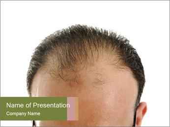 Baldness Problem PowerPoint Template