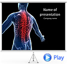 Spine Pain Animated PowerPoint Templates
