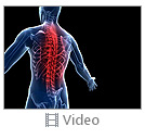 Spine Pain Video