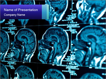 Brain Scan PowerPoint Template