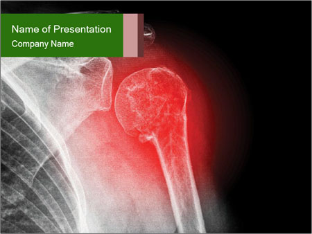 bone x-ray powerpoint template & backgrounds id 0000032044, Modern powerpoint
