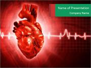 Heart Arrhythmia Шаблоны презентаций PowerPoint