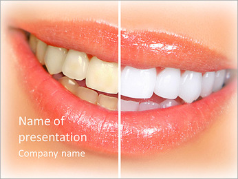 Teeth Whitening PowerPoint Template