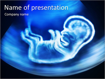 Pregnancy Ultrasound PowerPoint Template
