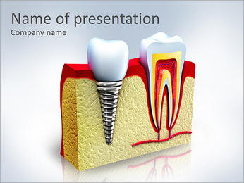 Tooth Implant PowerPoint Template