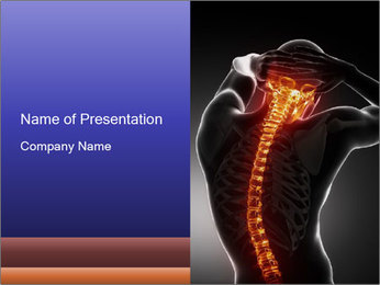 Spinal Scan PowerPoint Templates - Slide 1