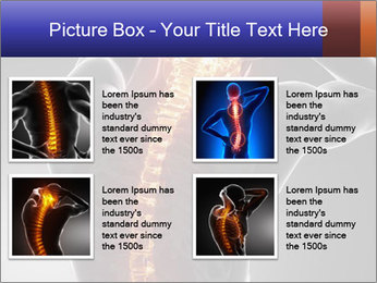 Spinal Scan PowerPoint Templates - Slide 14