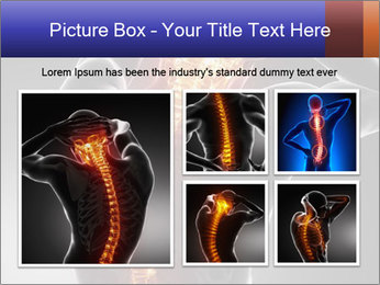 Spinal Scan PowerPoint Templates - Slide 19