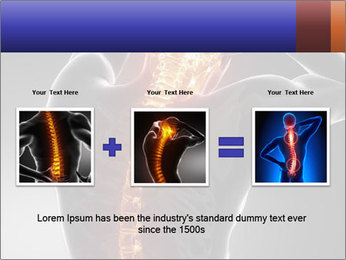 Spinal Scan PowerPoint Templates - Slide 22