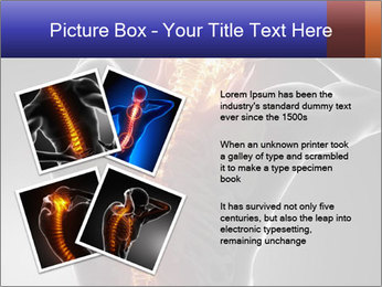 Spinal Scan PowerPoint Templates - Slide 23