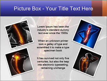 Spinal Scan PowerPoint Templates - Slide 24