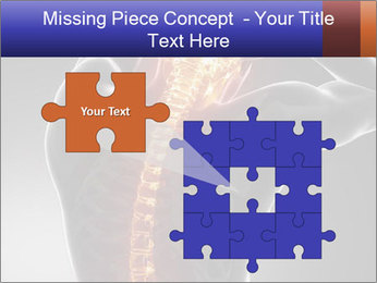 Spinal Scan PowerPoint Templates - Slide 45