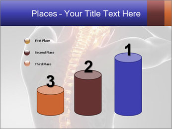 Spinal Scan PowerPoint Templates - Slide 65