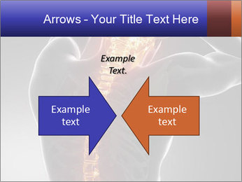 Spinal Scan PowerPoint Templates - Slide 90
