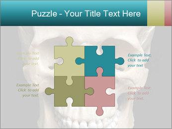 Real Model of Human Skull PowerPoint Templates - Slide 43