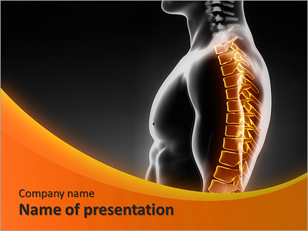 Spine X Ray Powerpoint Template Backgrounds Google Slides Id