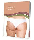 Cellulite Problem Presentation Folder
