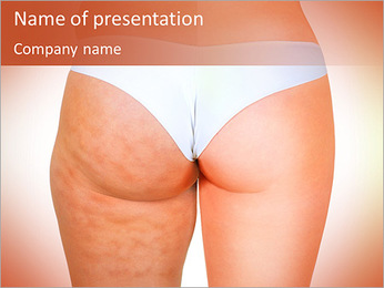 Cellulite Problem PowerPoint Template - Slide 1