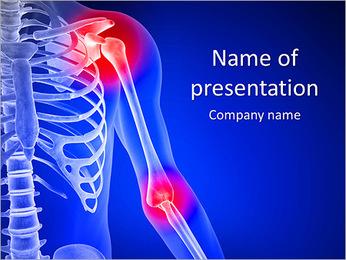 Shoulder Pain PowerPoint Template - Slide 1
