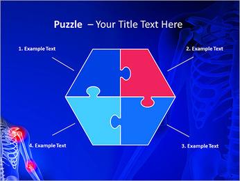 Shoulder Pain PowerPoint Template - Slide 20