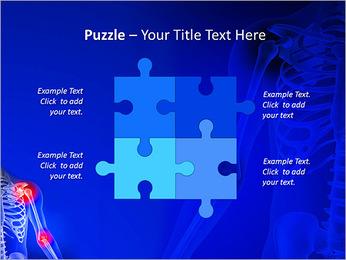 Shoulder Pain PowerPoint Template - Slide 23