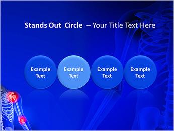 Shoulder Pain PowerPoint Template - Slide 56
