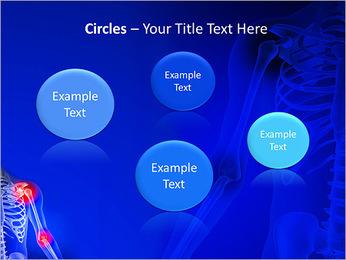 Shoulder Pain PowerPoint Template - Slide 57