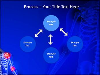 Shoulder Pain PowerPoint Template - Slide 71
