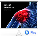 Shoulder Treatment Animated PowerPoint Template