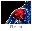 Shoulder Treatment Video