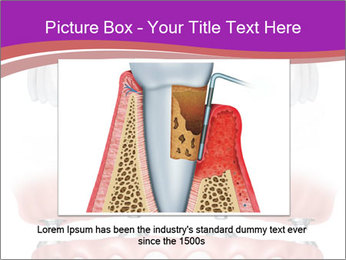 0000071962 PowerPoint Template - Slide 15