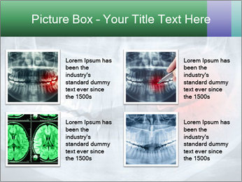 0000072235 PowerPoint Template - Slide 14