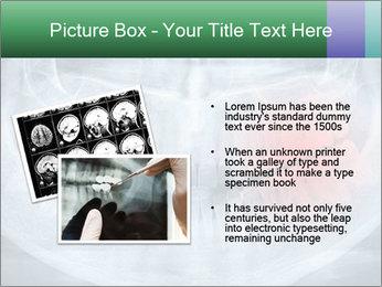 0000072235 PowerPoint Template - Slide 20