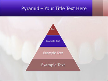 0000072676 PowerPoint Templates - Slide 30
