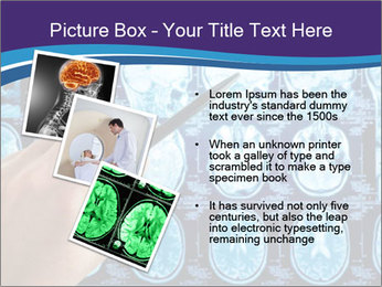 0000074019 PowerPoint Template - Slide 17
