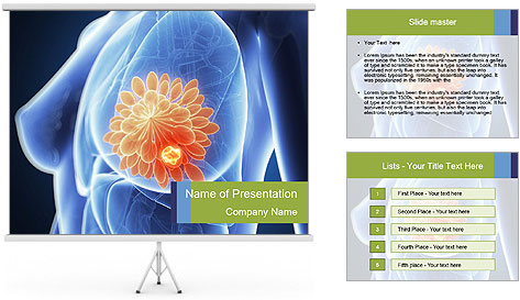 0000074925 PowerPoint Template