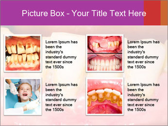 0000074994 PowerPoint Template - Slide 14