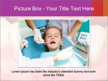 0000074994 PowerPoint Template - Slide 15