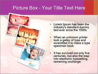 0000074994 PowerPoint Template - Slide 17