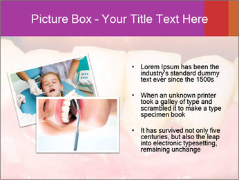 0000074994 PowerPoint Template - Slide 20