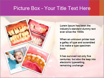 0000074994 PowerPoint Template - Slide 23
