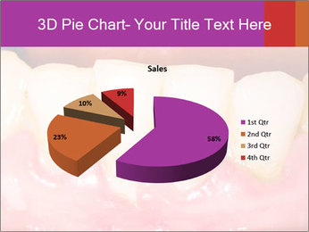0000074994 PowerPoint Template - Slide 35