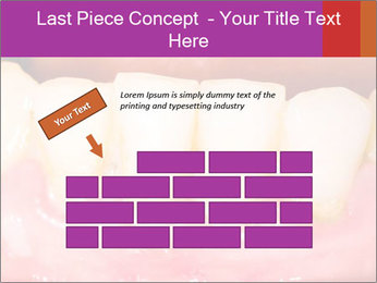 0000074994 PowerPoint Template - Slide 46
