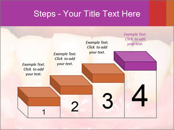 0000074994 PowerPoint Template - Slide 64