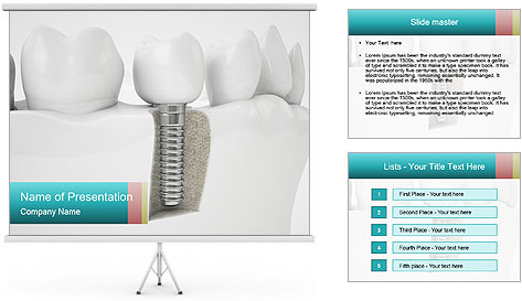 0000077153 PowerPoint Template