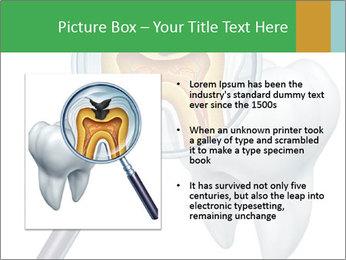 0000078693 PowerPoint Template - Slide 13